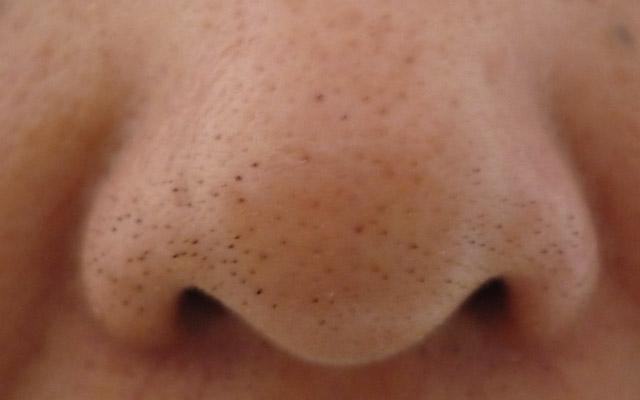 Ogrci na nosu